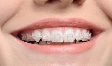 矯正治療(全顎矯正・舌側矯正)